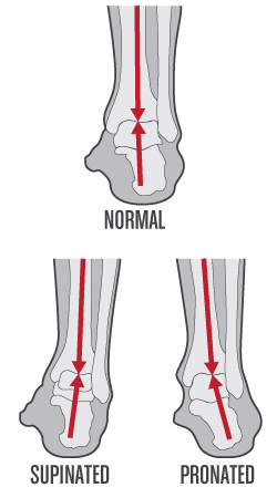 Bad Foot Positions Posture