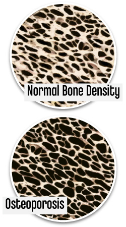 Osteoporosis Bone Deterioration with Age