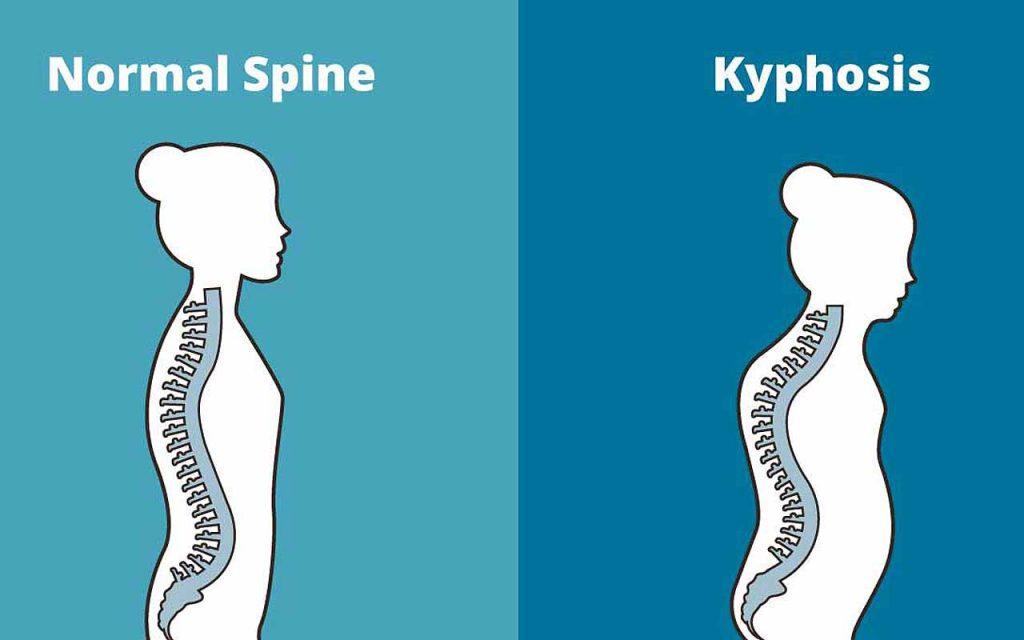 Thoracic Kyphosis Symptoms