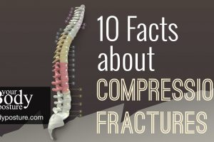 10 Facts about Compression Fractures