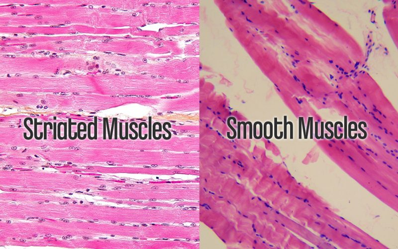 Muscles & Poor Posture - Striated Smooth Muscles